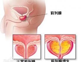 前列腺肥大(前列腺增生)影响性生活吗?