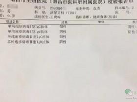 单纯疱疹病毒1型igg抗体阳性可以用nbb男士修护膏吗?