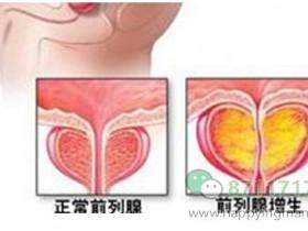 前列腺增生的发生的原因?与哪些因素有关?