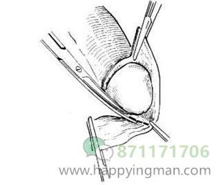 包茎过长到底要不要手术割掉?不割有其它方法延时?